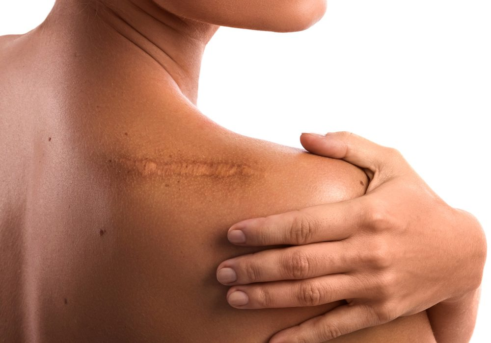 Natural Remedies for Scars